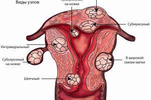 Маточная миома и беременность