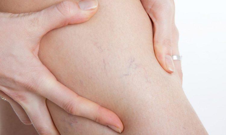 Варикозное расширение вен и беременность