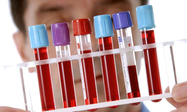 Анализ крови (биохимический)